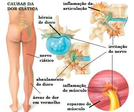 Boa postura evita problemas com o nervo ciático